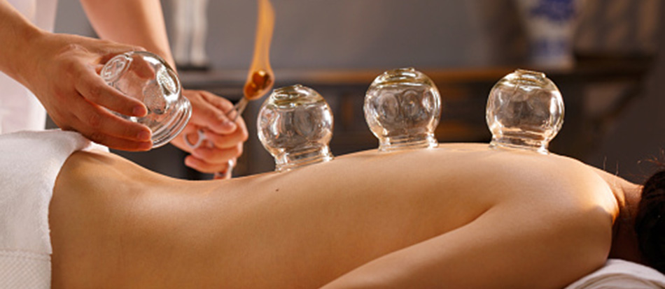Cupping is an ancient form of therapy